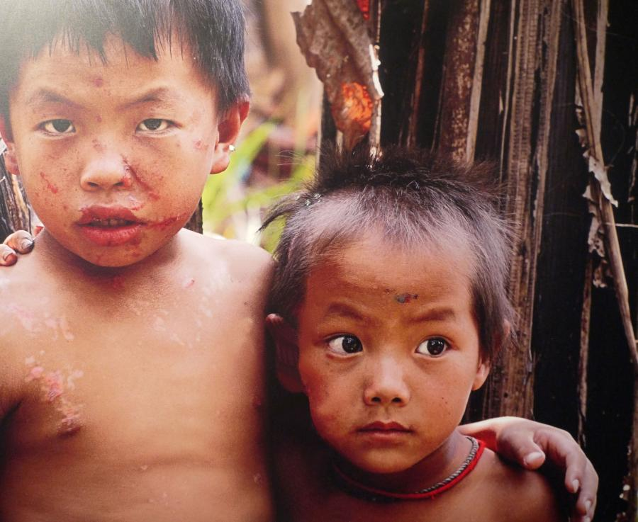 Yukhu (left) & Yavhu were lucky to survive by running away from a bombie their friend discovered.  Both the friend and another boy were killed.